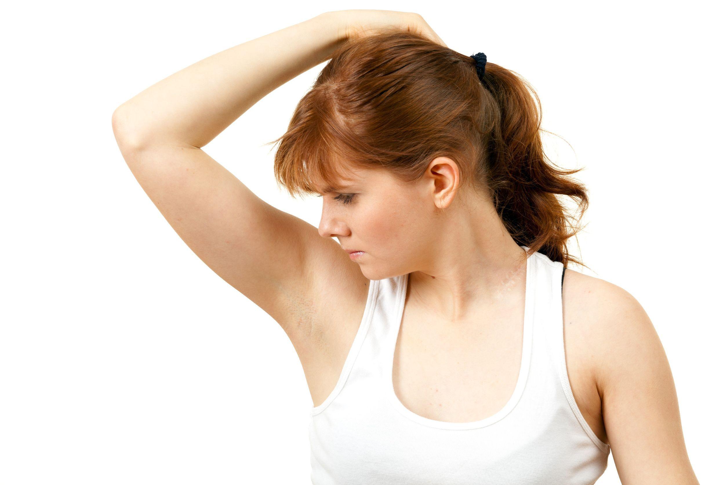 Bật mí 4 cách chữa hôi nách cực hiệu quả và an toàn