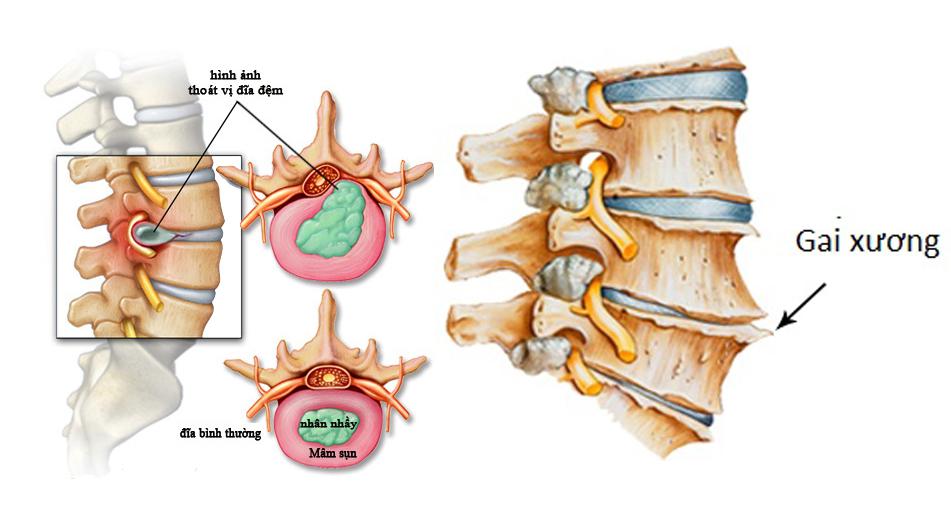 Triệu chứng bệnh thoái hóa cột sống thắt lưng và cách điều trị